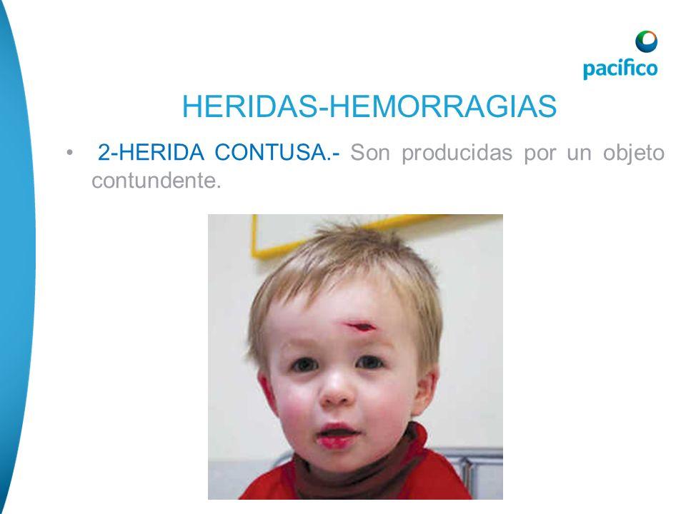 2-HERIDA CONTUSA.- Son producidas por un objeto contundente. HERIDAS-HEMORRAGIAS