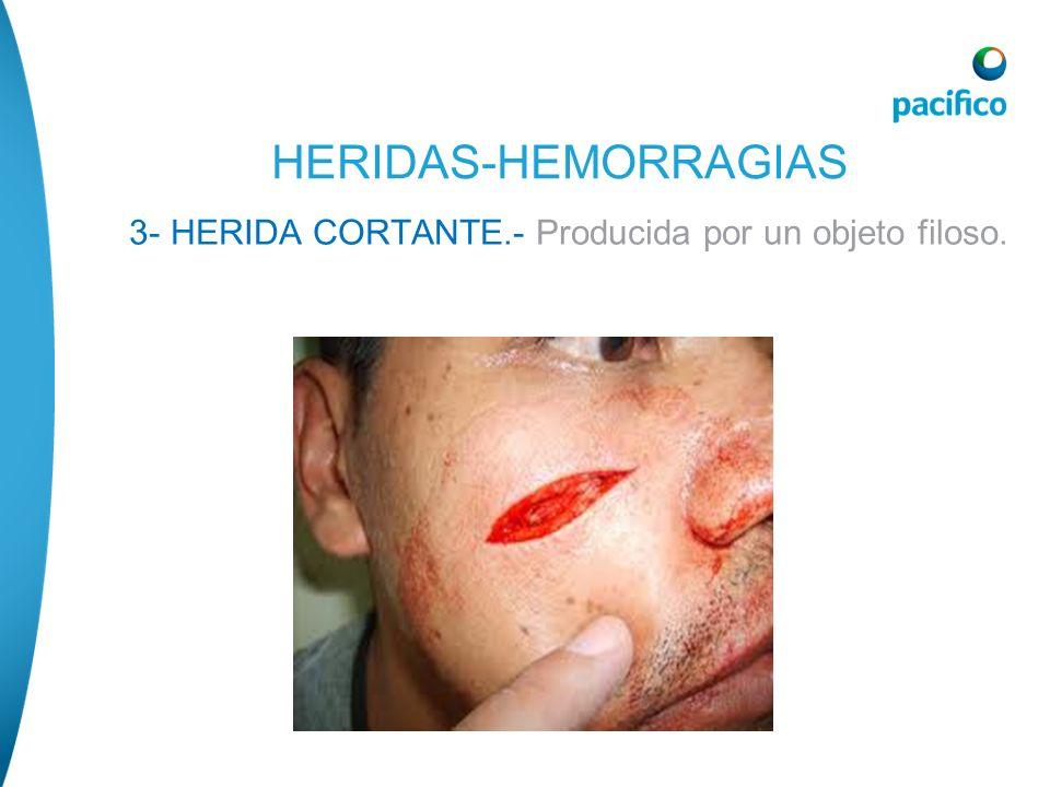 3- HERIDA CORTANTE.- Producida por un objeto filoso. HERIDAS-HEMORRAGIAS
