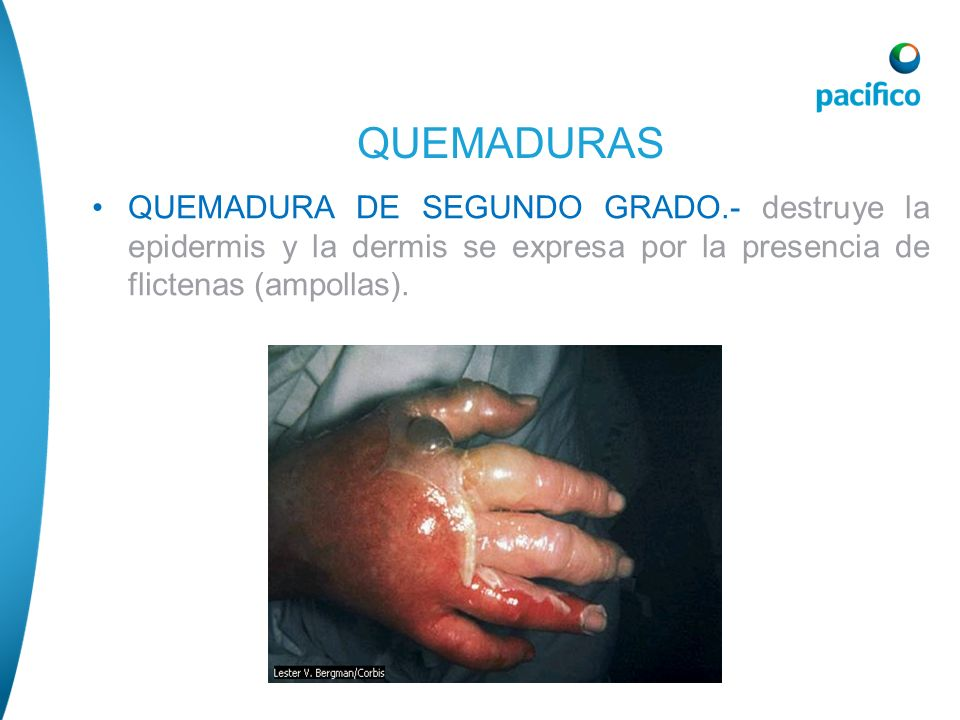 QUEMADURA DE SEGUNDO GRADO.- destruye la epidermis y la dermis se expresa por la presencia de flictenas (ampollas). QUEMADURAS
