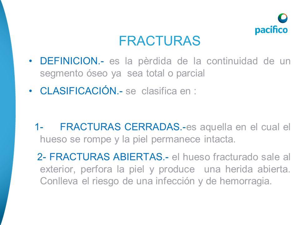 DEFINICION.- es la pèrdida de la continuidad de un segmento óseo ya sea total o parcial CLASIFICACIÓN.- se clasifica en : 1- FRACTURAS CERRADAS.-es aq