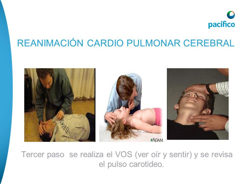 Tercer paso se realiza el VOS (ver oír y sentir) y se revisa el pulso carotideo. REANIMACIÓN CARDIO PULMONAR CEREBRAL
