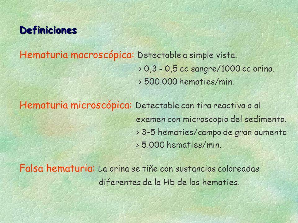 Hematuria macroscópica: Detectable a simple vista. > 0,3 - 0,5 cc sangre/1000 cc orina. > 500.000 hematies/min. Hematuria microscópica: Detectable con