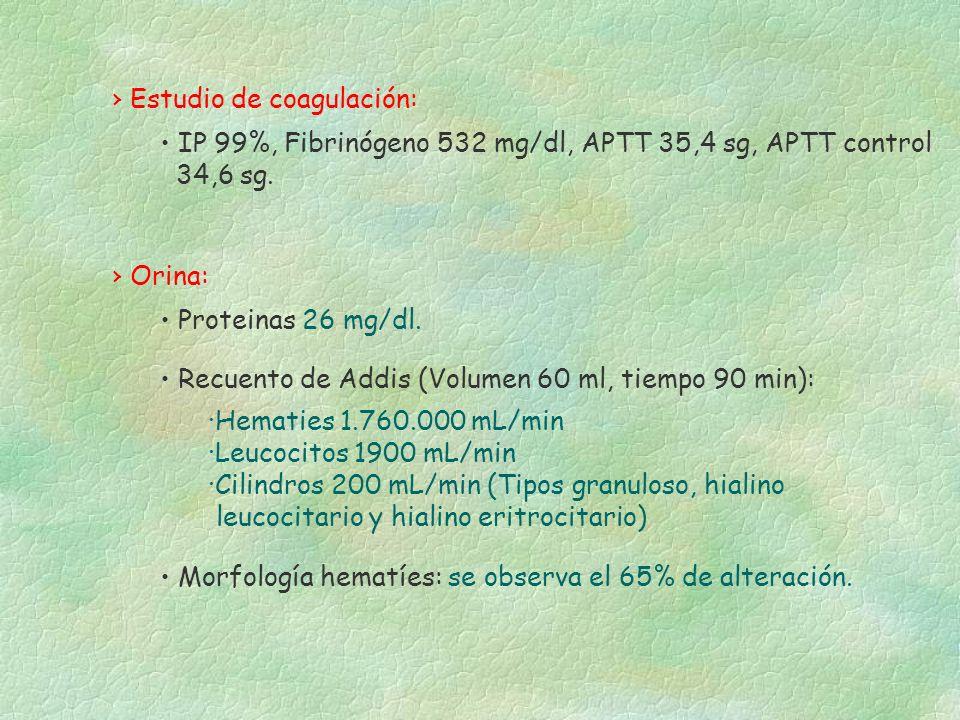 Orina: Morfología hematíes: se observa el 65% de alteración. Proteinas 26 mg/dl. Recuento de Addis (Volumen 60 ml, tiempo 90 min): ·Hematies 1.760.000