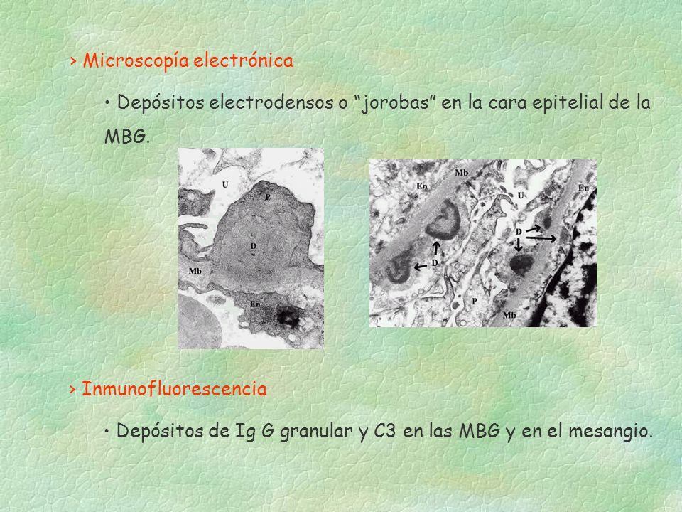 Microscopía electrónica Depósitos electrodensos o jorobas en la cara epitelial de la MBG. Inmunofluorescencia Depósitos de Ig G granular y C3 en las M