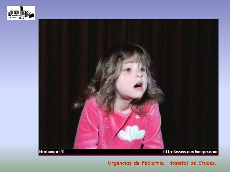 Técnica MDI agitar inhalador correcto acoplamiento inhalador a espaciador pulsar inhalador (impregnar) no más de 3 puff por vez boquilla entre los labios y dientes inhalar al menos 5 veces comprobar que se mueve la válvula Urgencias de Pediatría.