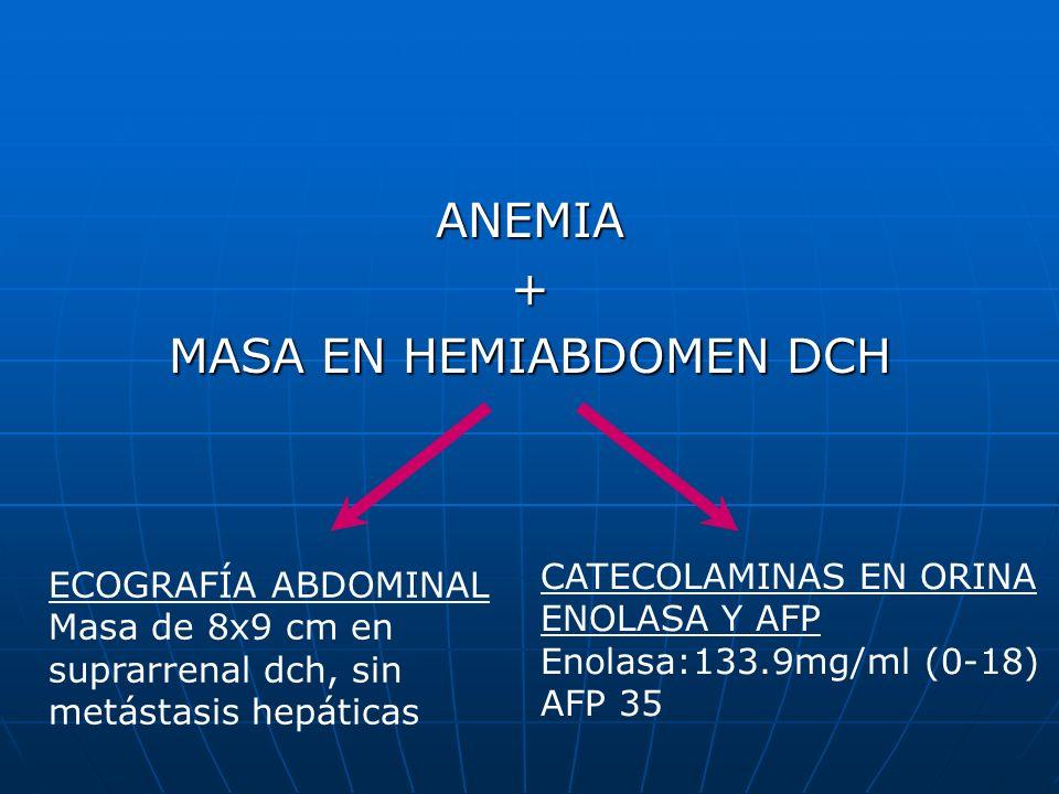 ANEMIA+ MASA EN HEMIABDOMEN DCH ECOGRAFÍA ABDOMINAL Masa de 8x9 cm en suprarrenal dch, sin metástasis hepáticas CATECOLAMINAS EN ORINA ENOLASA Y AFP E