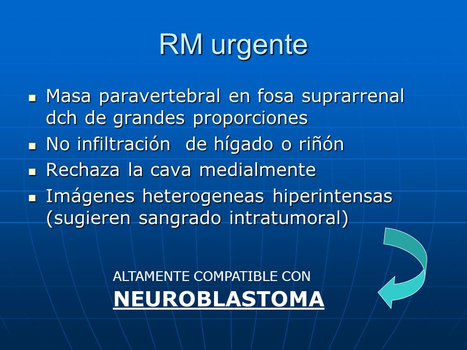 RM urgente Masa paravertebral en fosa suprarrenal dch de grandes proporciones Masa paravertebral en fosa suprarrenal dch de grandes proporciones No in
