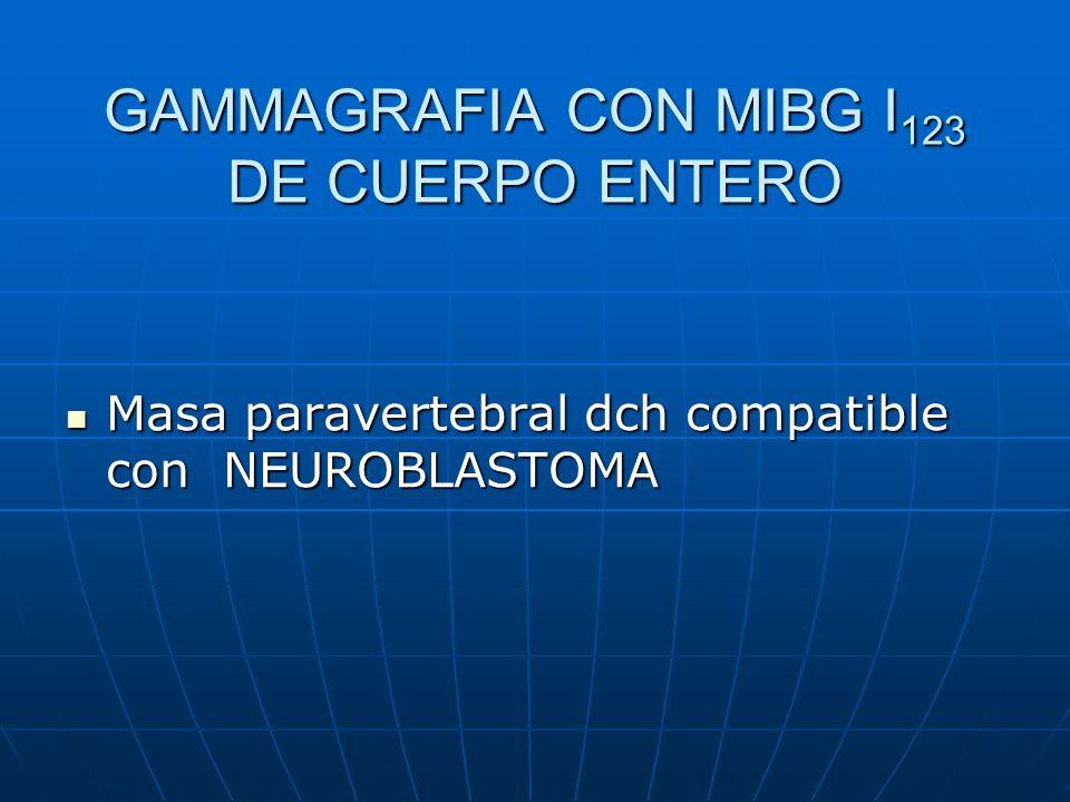 GAMMAGRAFIA CON MIBG I 123 DE CUERPO ENTERO Masa paravertebral dch compatible con NEUROBLASTOMA Masa paravertebral dch compatible con NEUROBLASTOMA