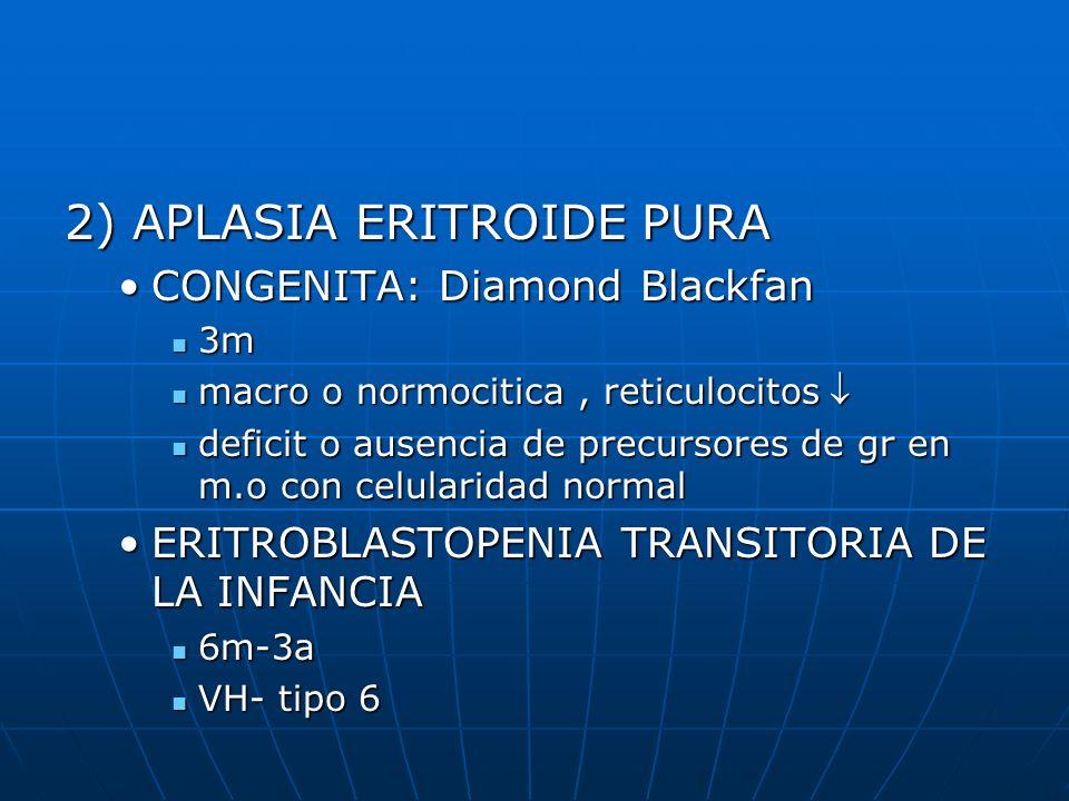 2) APLASIA ERITROIDE PURA CONGENITA: Diamond BlackfanCONGENITA: Diamond Blackfan 3m 3m macro o normocitica, reticulocitos macro o normocitica, reticul