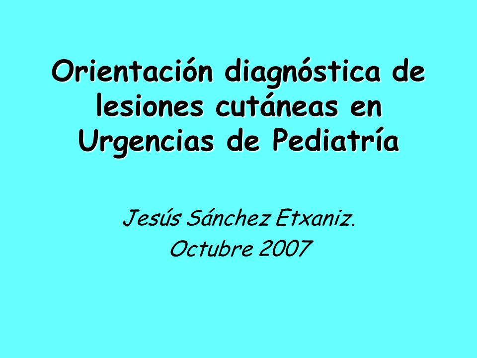 Orientación diagnóstica de lesiones cutáneas en Urgencias de Pediatría Jesús Sánchez Etxaniz. Octubre 2007