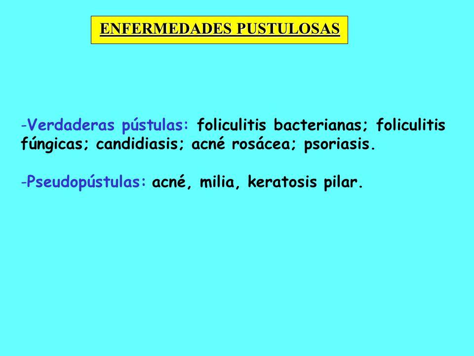 - -Verdaderas pústulas: foliculitis bacterianas; foliculitis fúngicas; candidiasis; acné rosácea; psoriasis. - -Pseudopústulas: acné, milia, keratosis
