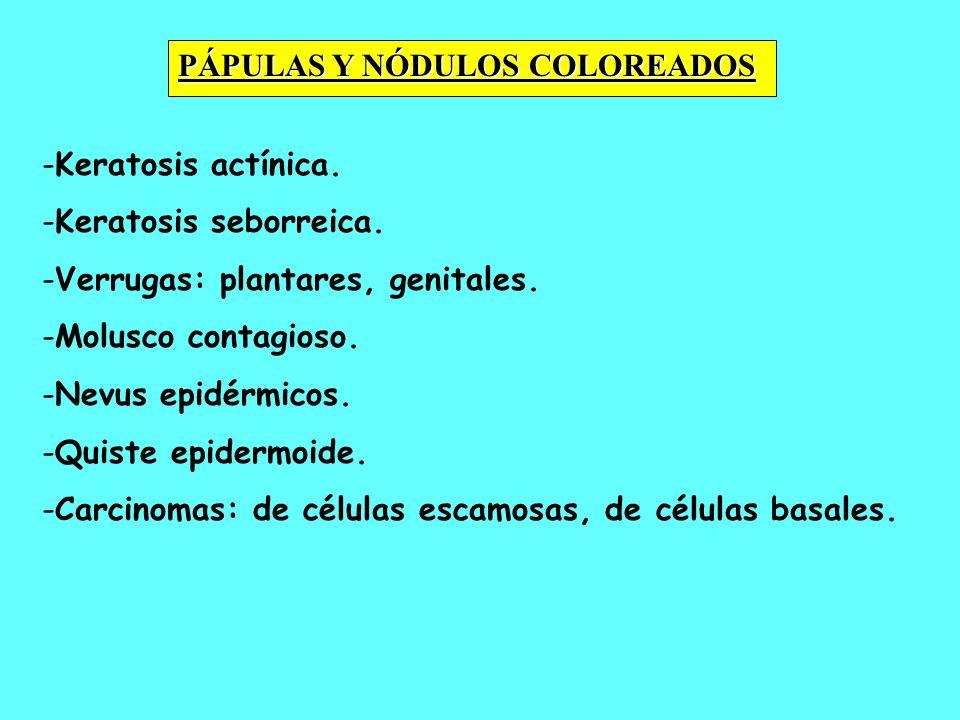 - -Keratosis actínica. - -Keratosis seborreica. - -Verrugas: plantares, genitales. - -Molusco contagioso. - -Nevus epidérmicos. - -Quiste epidermoide.