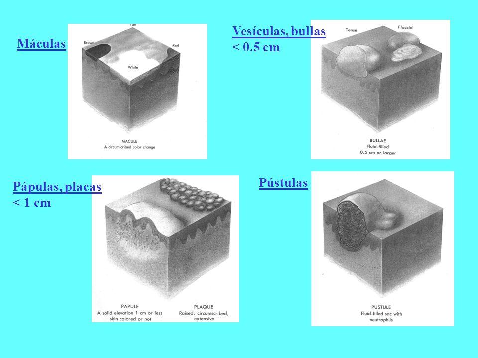 Máculas Pápulas, placas < 1 cm Vesículas, bullas < 0.5 cm Pústulas