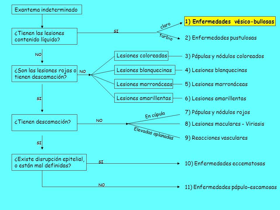 Fiebre > 38.9ºC.Exantema: eritrodermia macular difuso.