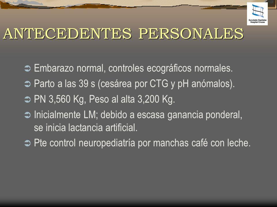 EXPLORACIÓN FÍSICA Peso 3,300 Kg (<p3); Talla 50,5 (p3-10) AP: normal.