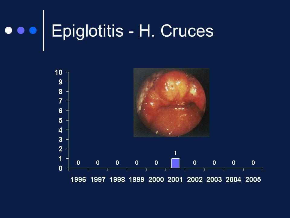 Epiglotitis - H. Cruces
