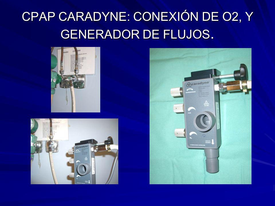 CPAP CARADYNE: CONEXIÓN DE O2, Y GENERADOR DE FLUJOS.