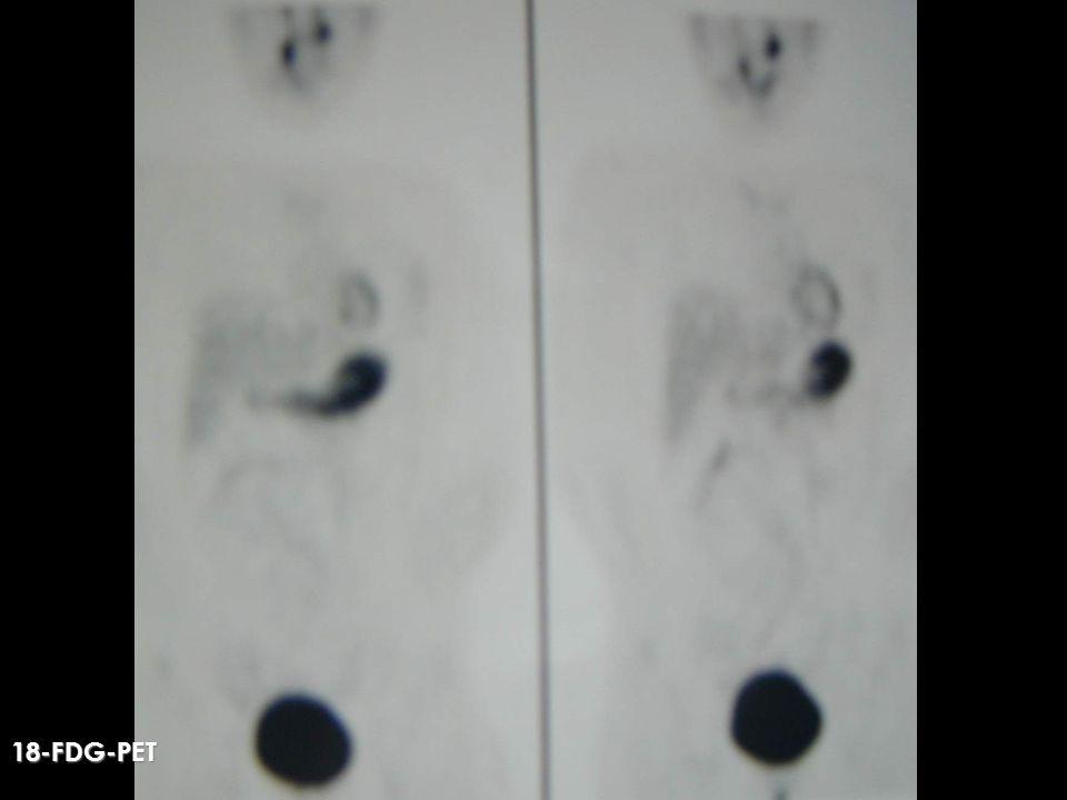 CATETERIZACION VENOSA CATETERIZACION VENOSA Facilita la detección de focos ocultos Facilita la detección de focos ocultos Realiza determinaciones de CT en cuello, tórax y abdomen Realiza determinaciones de CT en cuello, tórax y abdomen Compara gradiente: Compara gradiente: suprahepáticas/ vena cava superior yugular derecha/ yugular izquierda Puede realizarse con CTb y CTp Puede realizarse con CTb y CTp RECIDIVAS DE CANCER DE TIROIDES Cancer Medular de Tiroides ¿UTILIDAD DE OTRAS TECNICAS.