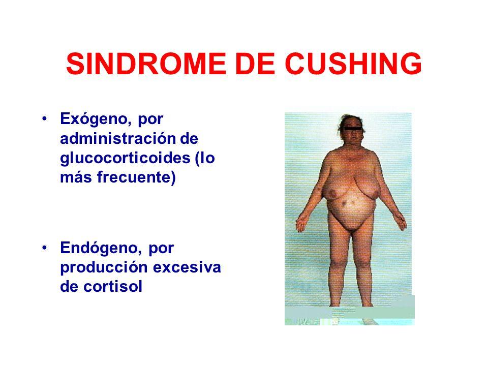 SINDROME DE CUSHING Exógeno, por administración de glucocorticoides (lo más frecuente) Endógeno, por producción excesiva de cortisol