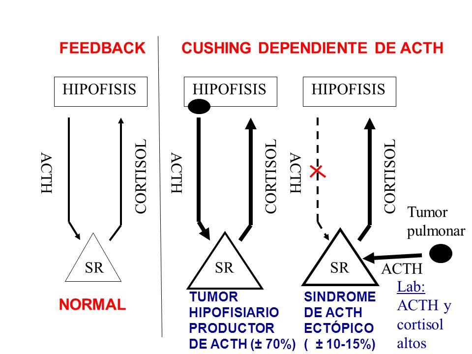 HIPOFISIS ACTH CORTISOL SR HIPOFISIS ACTH CORTISOL SR HIPOFISIS ACTH CORTISOL SR Tumor pulmonar ACTH FEEDBACKCUSHING DEPENDIENTE DE ACTH NORMAL TUMOR