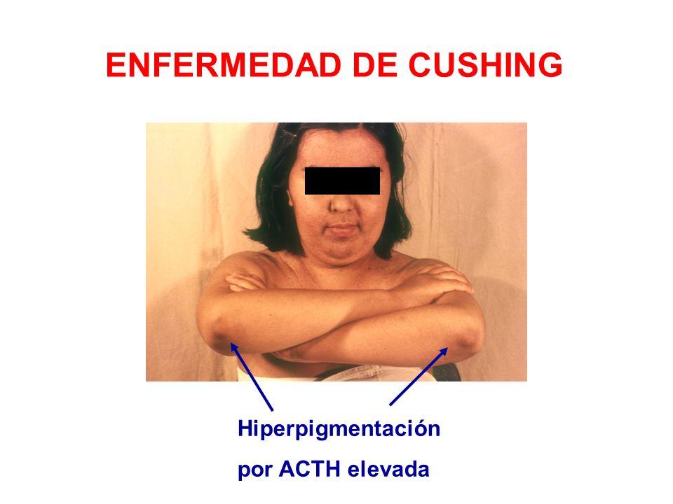 Hiperpigmentación por ACTH elevada ENFERMEDAD DE CUSHING