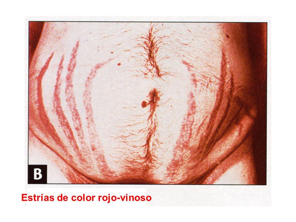 Estrías de color rojo-vinoso