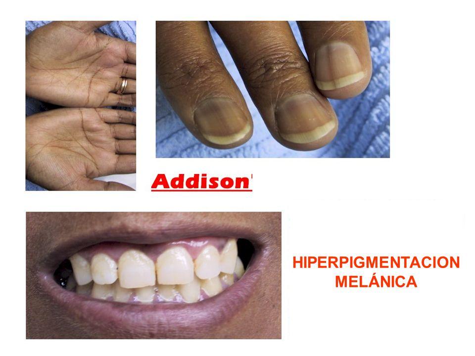 Enfermedad de Cushing: Adenoma hipo- fisiario productor de ACTH: Con Hiperpigmenta- ción Sindrome de Cushing: Adenoma suprarrenal productor de cortisol: Sin Hiperpigmenta- ción