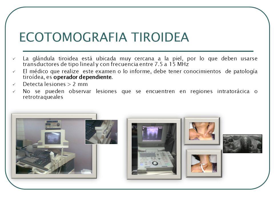 ECOTOMOGRAFIA TIROIDEA La glándula tiroidea está ubicada muy cercana a la piel, por lo que deben usarse transductores de tipo lineal y con frecuencia