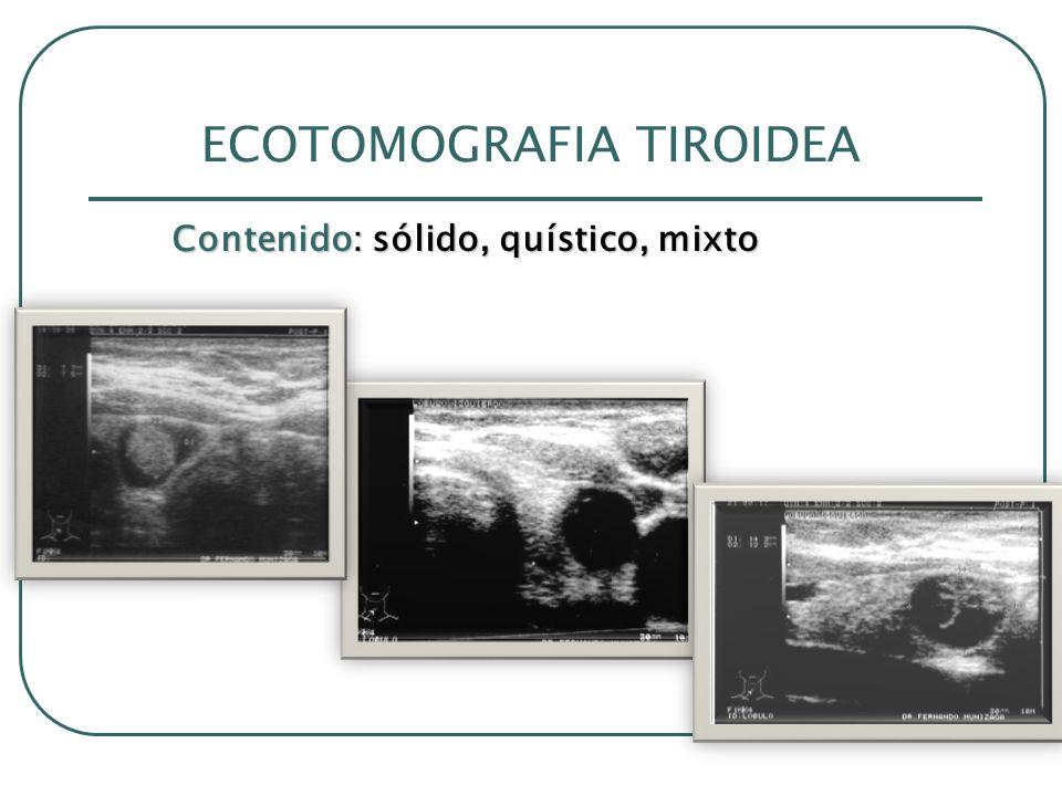 ECOTOMOGRAFIA TIROIDEA Contenido: sólido, quístico, mixto