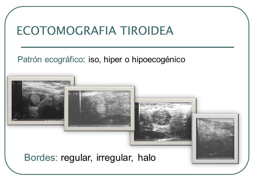 ECOTOMOGRAFIA TIROIDEA Patrón ecográfico: iso, hiper o hipoecogénico Bordes: regular, irregular, halo