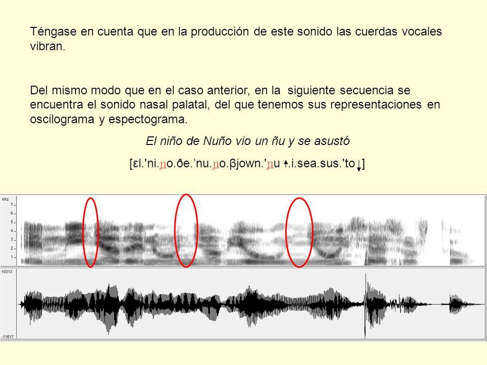 Téngase en cuenta que en la producción de este sonido las cuerdas vocales vibran. Del mismo modo que en el caso anterior, en la siguiente secuencia se