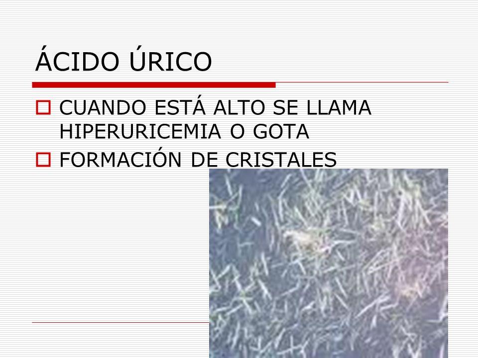 ÁCIDO ÚRICO CUANDO ESTÁ ALTO SE LLAMA HIPERURICEMIA O GOTA FORMACIÓN DE CRISTALES