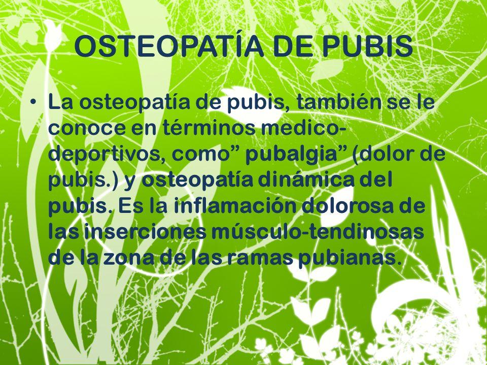 OSTEOPATÍA DE PUBIS La osteopatía de pubis, también se le conoce en términos medico- deportivos, como pubalgia (dolor de pubis.) y osteopatía dinámica