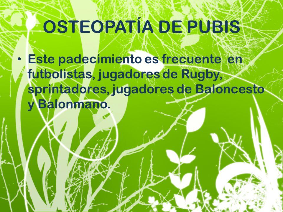 OSTEOPATÍA DE PUBIS Este padecimiento es frecuente en futbolistas, jugadores de Rugby, sprintadores, jugadores de Baloncesto y Balonmano.