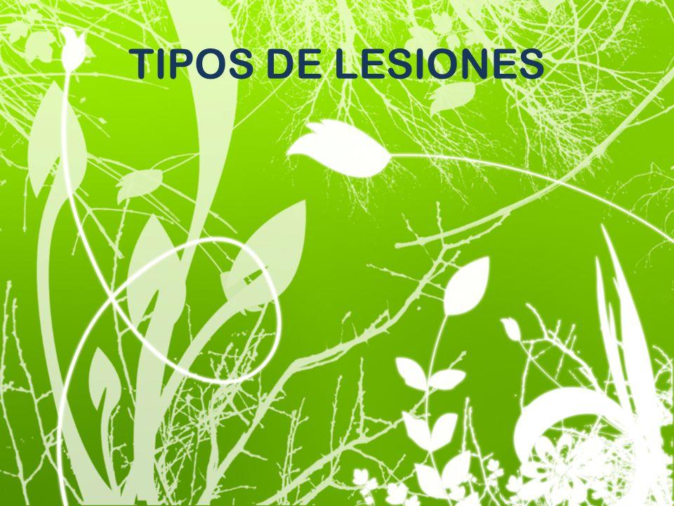 TIPOS DE LESIONES