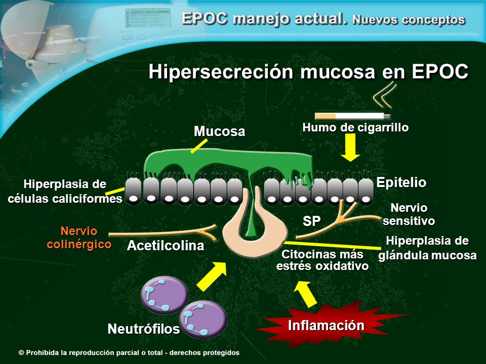 Hipersecreción mucosa en EPOC Neutrófilos Humo de cigarrillo Humo de cigarrillo Epitelio Inflamación Mucosa Hiperplasia de glándula mucosa Citocinas más estrés oxidativo Nervio sensitivo Nervio colinérgico SP Acetilcolina Hiperplasia de células caliciformes