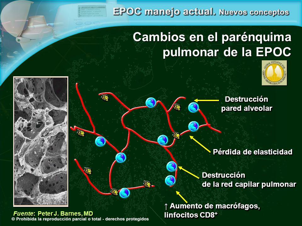 Destrucción pared alveolar Destrucción pared alveolar Pérdida de elasticidad Destrucción de la red capilar pulmonar Destrucción de la red capilar pulmonar Aumento de macrófagos, Aumento de macrófagos, linfocitos CD8 + Aumento de macrófagos, Aumento de macrófagos, linfocitos CD8 + Fuente: Peter J.