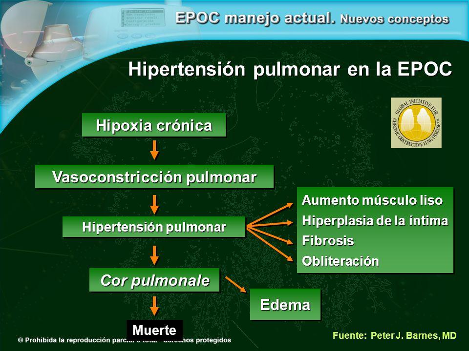 Hipoxia crónica Fuente: Peter J.