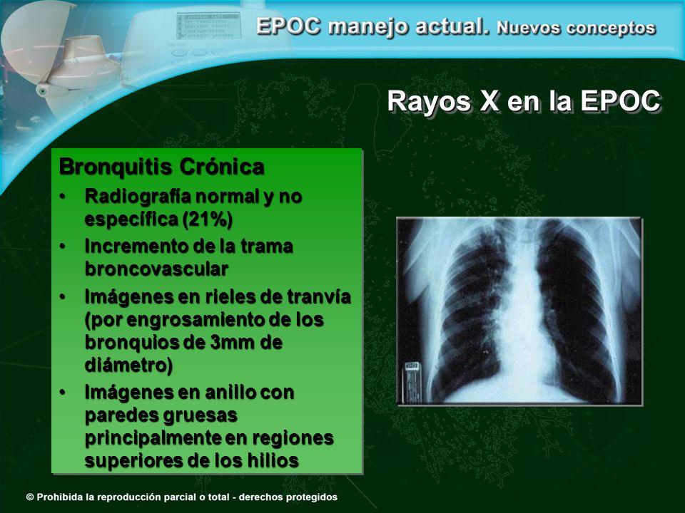 Rayos X en la EPOC Bronquitis Crónica Radiografía normal y no específica (21%)Radiografía normal y no específica (21%) Incremento de la trama broncovascularIncremento de la trama broncovascular Imágenes en rieles de tranvía (por engrosamiento de los bronquios de 3mm de diámetro)Imágenes en rieles de tranvía (por engrosamiento de los bronquios de 3mm de diámetro) Imágenes en anillo con paredes gruesas principalmente en regiones superiores de los hiliosImágenes en anillo con paredes gruesas principalmente en regiones superiores de los hilios Bronquitis Crónica Radiografía normal y no específica (21%)Radiografía normal y no específica (21%) Incremento de la trama broncovascularIncremento de la trama broncovascular Imágenes en rieles de tranvía (por engrosamiento de los bronquios de 3mm de diámetro)Imágenes en rieles de tranvía (por engrosamiento de los bronquios de 3mm de diámetro) Imágenes en anillo con paredes gruesas principalmente en regiones superiores de los hiliosImágenes en anillo con paredes gruesas principalmente en regiones superiores de los hilios