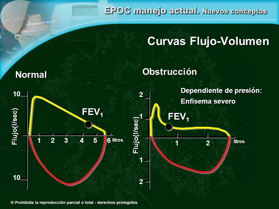 Dependiente de presión: Enfisema severo Obstrucción FEV 1 2112 Curvas Flujo-Volumen Flujo(l/sec) Normal FEV 1 1010 1 2 3 4 5 6 1 2 litros Flujo(l/sec)