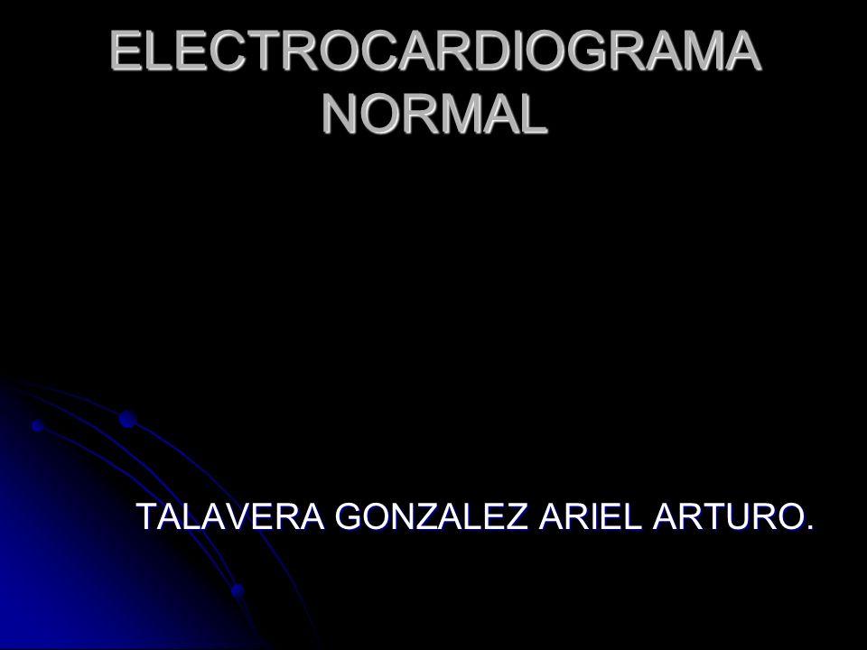 ELECTROCARDIOGRAMA NORMAL TALAVERA GONZALEZ ARIEL ARTURO.
