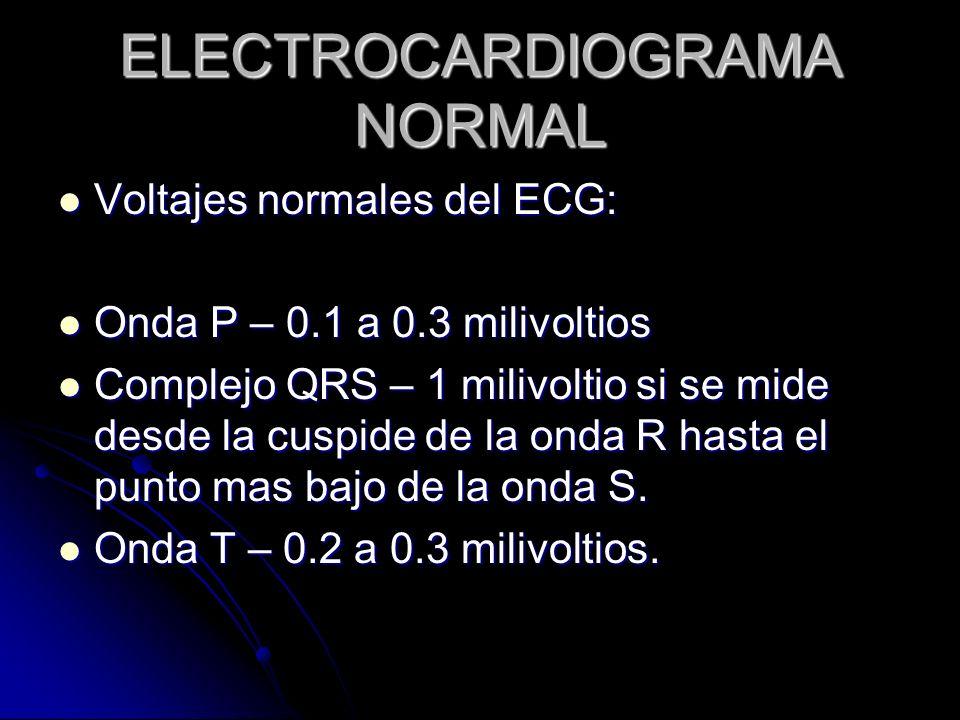 ELECTROCARDIOGRAMA NORMAL Voltajes normales del ECG: Voltajes normales del ECG: Onda P – 0.1 a 0.3 milivoltios Onda P – 0.1 a 0.3 milivoltios Complejo
