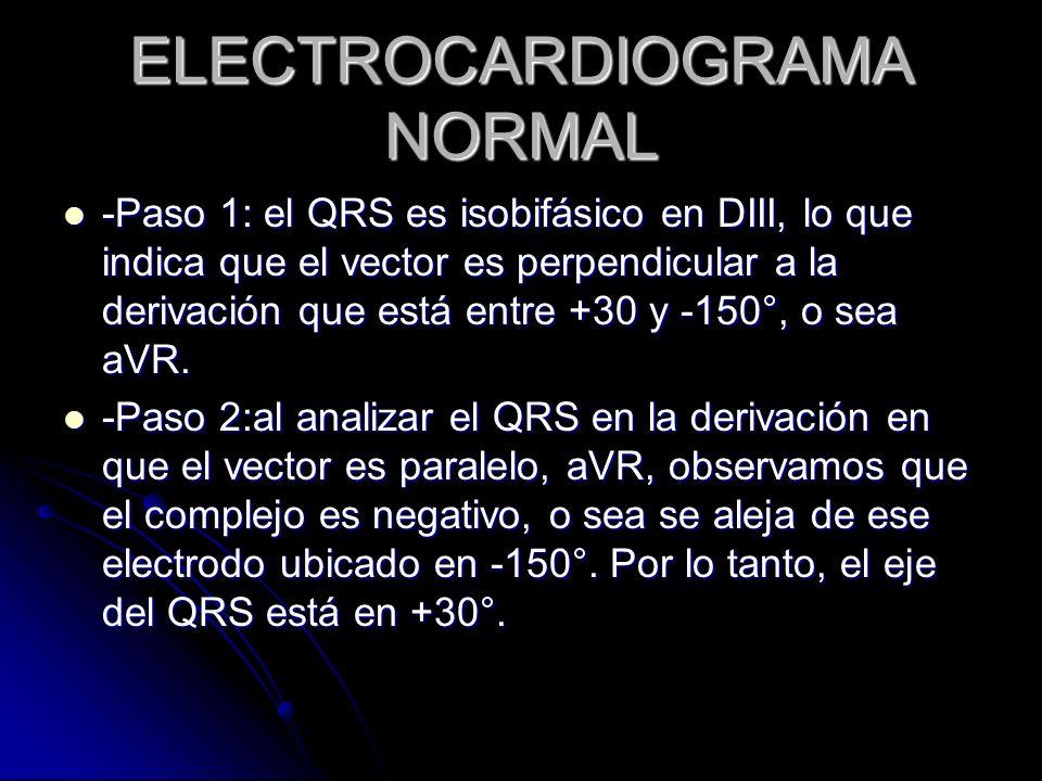 -Paso 1: el QRS es isobifásico en DIII, lo que indica que el vector es perpendicular a la derivación que está entre +30 y -150°, o sea aVR. -Paso 1: e
