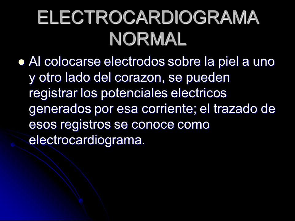 ELECTROCARDIOGRAMA NORMAL Al colocarse electrodos sobre la piel a uno y otro lado del corazon, se pueden registrar los potenciales electricos generado