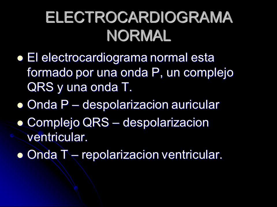 ELECTROCARDIOGRAMA NORMAL El electrocardiograma normal esta formado por una onda P, un complejo QRS y una onda T. El electrocardiograma normal esta fo