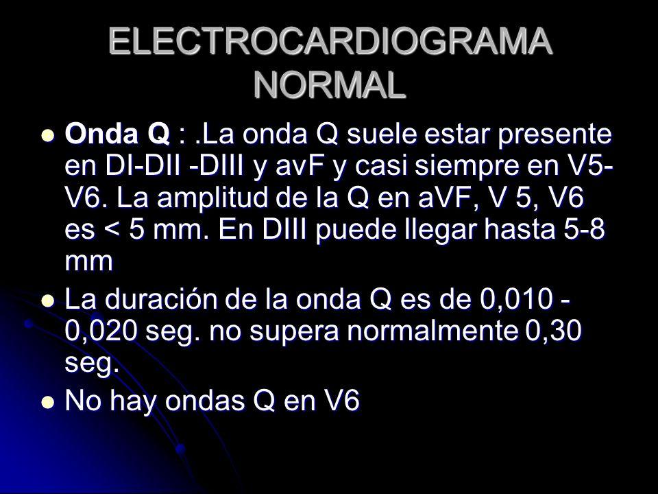 ELECTROCARDIOGRAMA NORMAL Onda Q :.La onda Q suele estar presente en DI-DII -DIII y avF y casi siempre en V5- V6. La amplitud de la Q en aVF, V 5, V6
