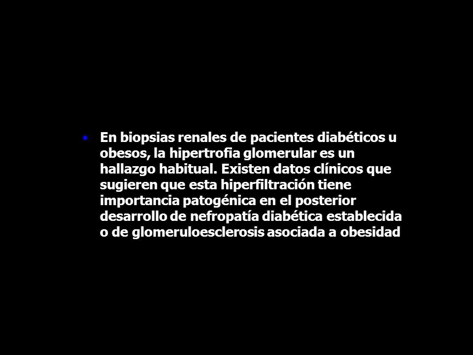 En biopsias renales de pacientes diabéticos u obesos, la hipertrofia glomerular es un hallazgo habitual. Existen datos clínicos que sugieren que esta