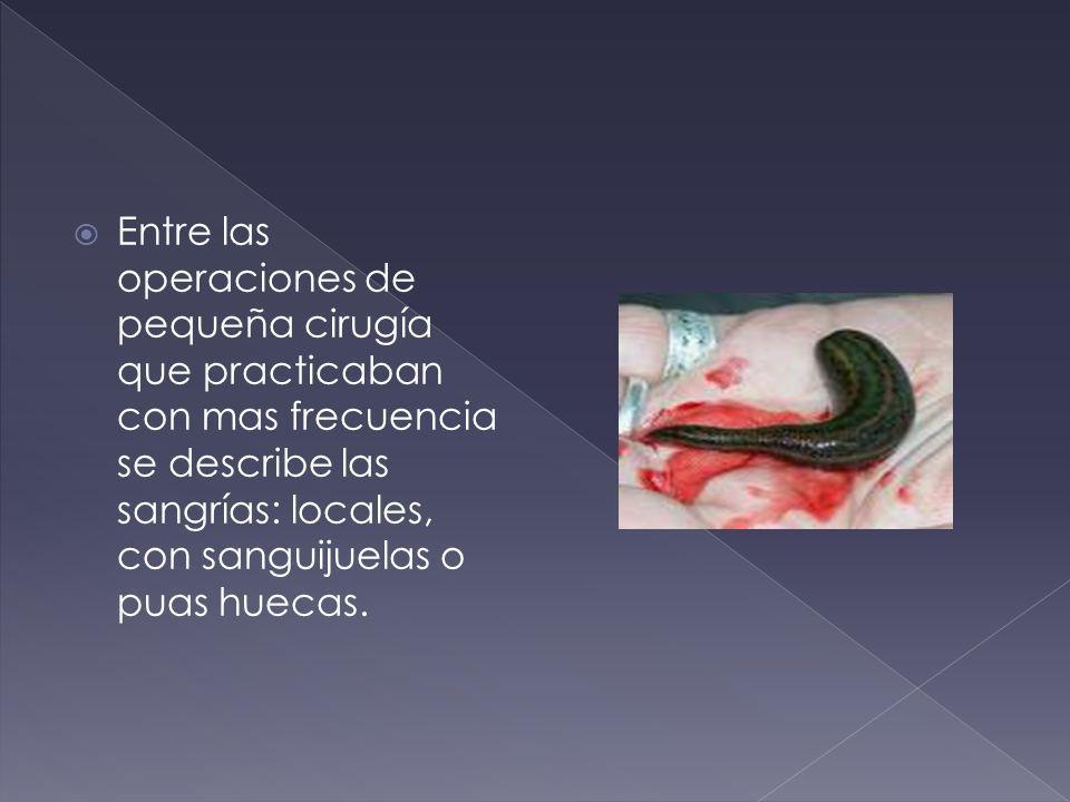 Entre las operaciones de pequeña cirugía que practicaban con mas frecuencia se describe las sangrías: locales, con sanguijuelas o puas huecas.