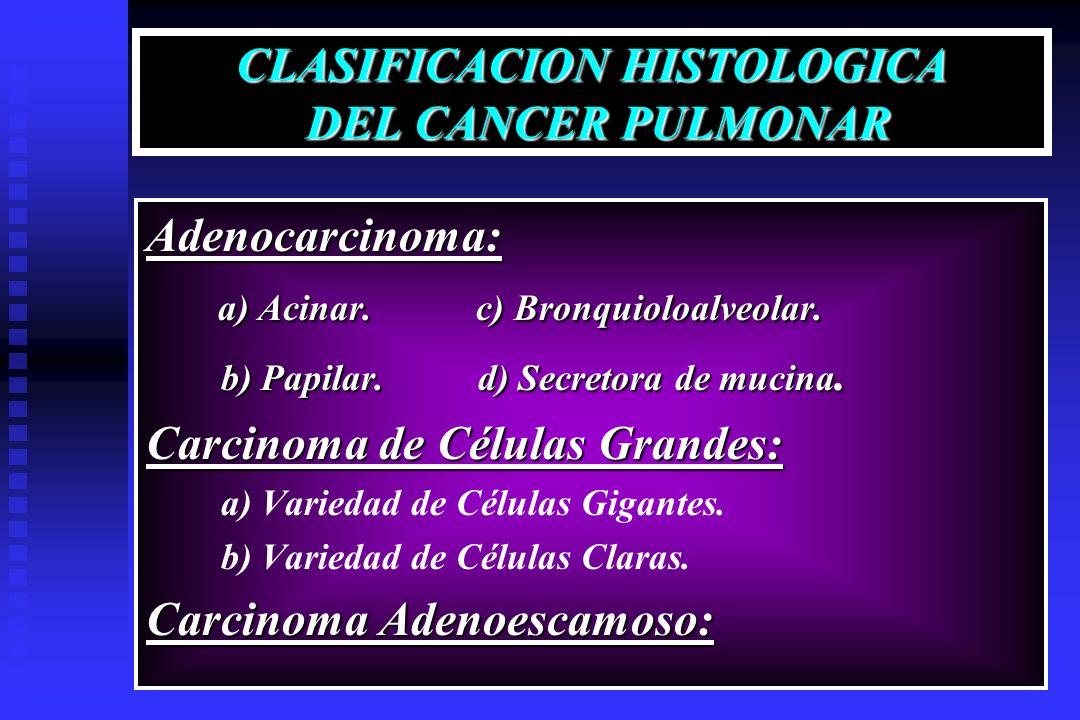 CLASIFICACION HISTOLOGICA DEL CANCER PULMONAR Adenocarcinoma: a) Acinar. c) Bronquioloalveolar. a) Acinar. c) Bronquioloalveolar. b) Papilar. d) Secre