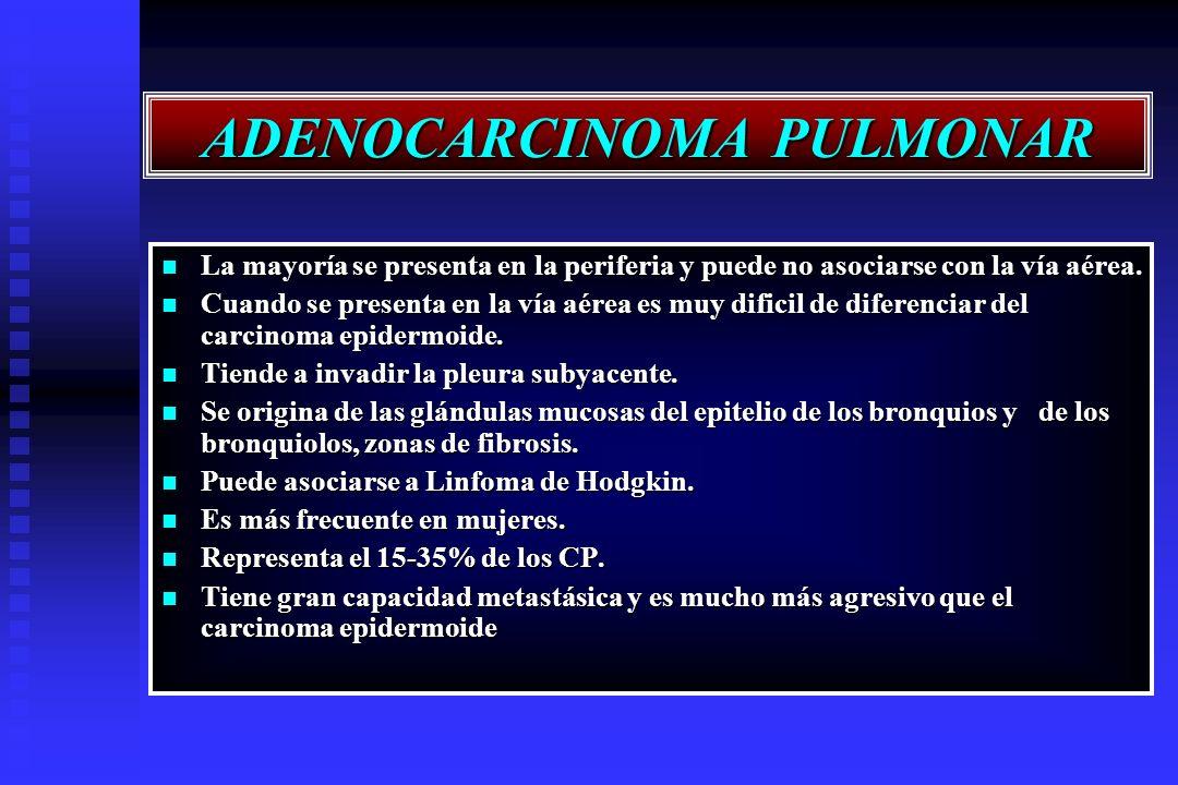 ADENOCARCINOMA PULMONAR La mayoría se presenta en la periferia y puede no asociarse con la vía aérea. La mayoría se presenta en la periferia y puede n